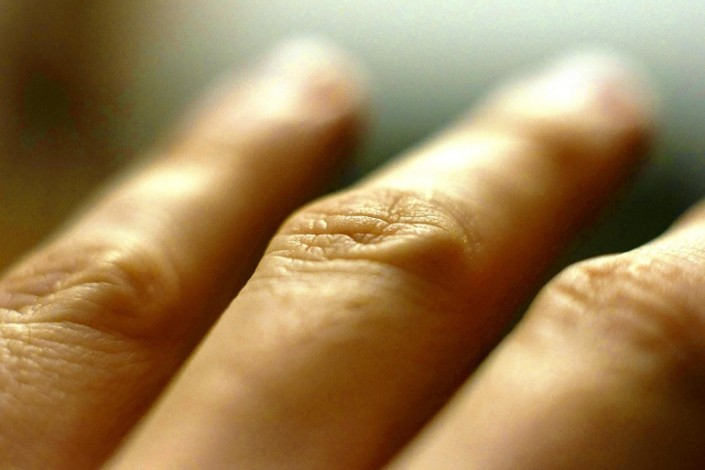 Arthritis and Homeopathy
